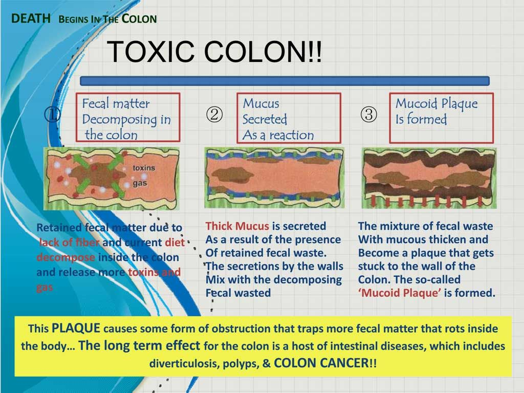Well This Is A Fun Topic Let S Discuss Colon