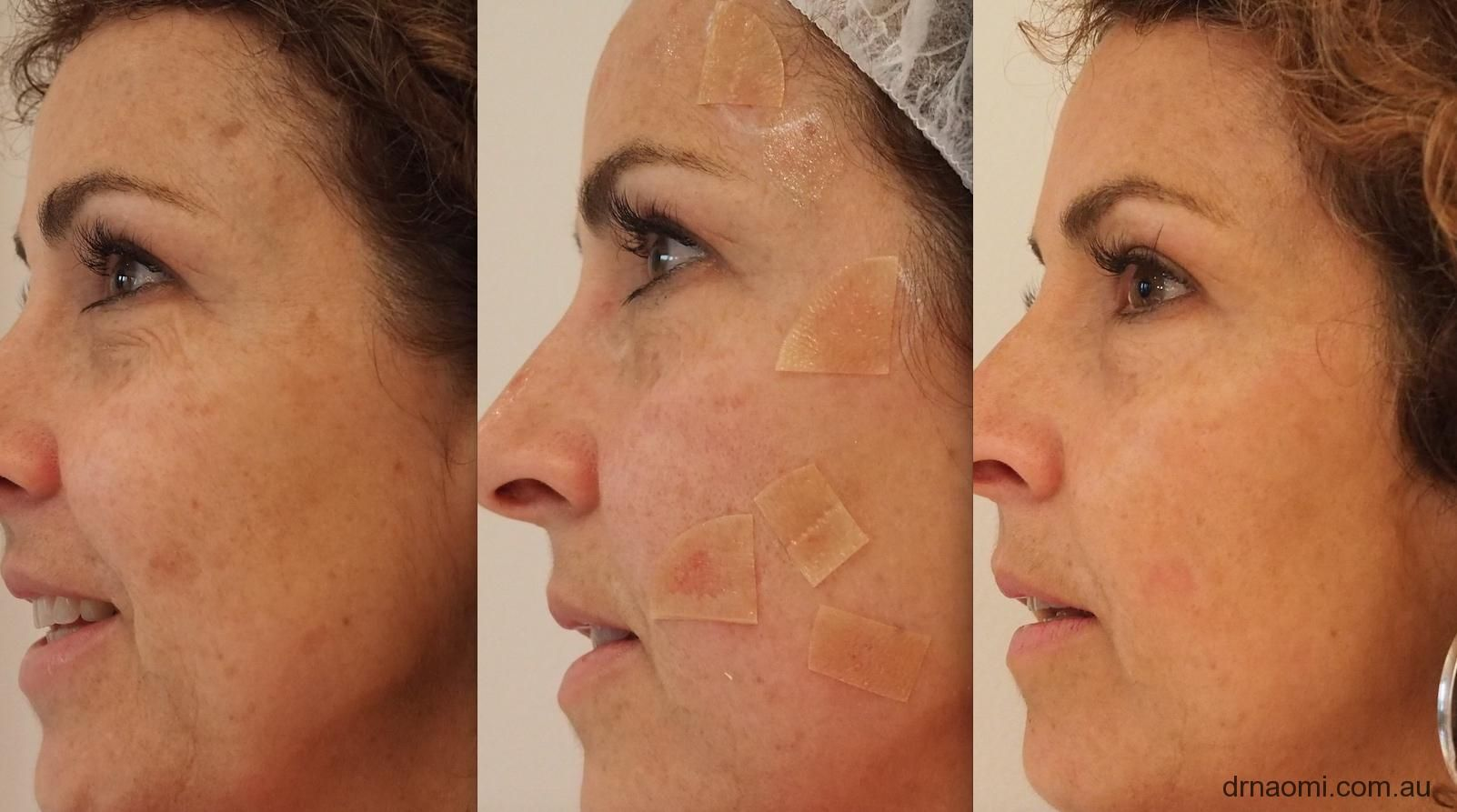 After Laser Treatment for Age Spots Photos Using creams to