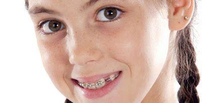 دكتور أسنان المختصر عن تقويم الأسنان Orthodontics Orthodontic Treatment Dentistry