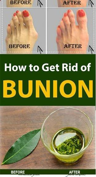 Get Rid of Bunions Naturally With This Simple But Powerful Remedy #fitness #beauty #hair #workout #h...