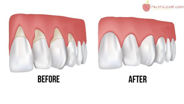 how to help gums grow back