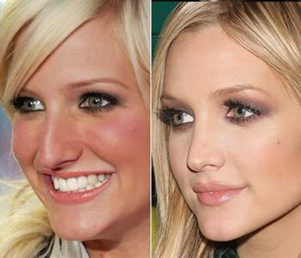 Celebrity Nose Jobs Before and After (With images