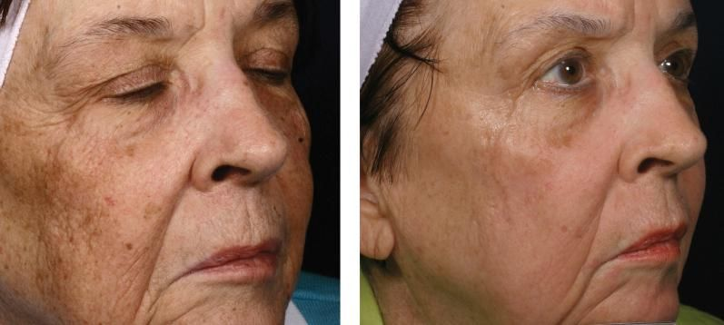 Erase decades' worth of aging and sun damage with Fraxel