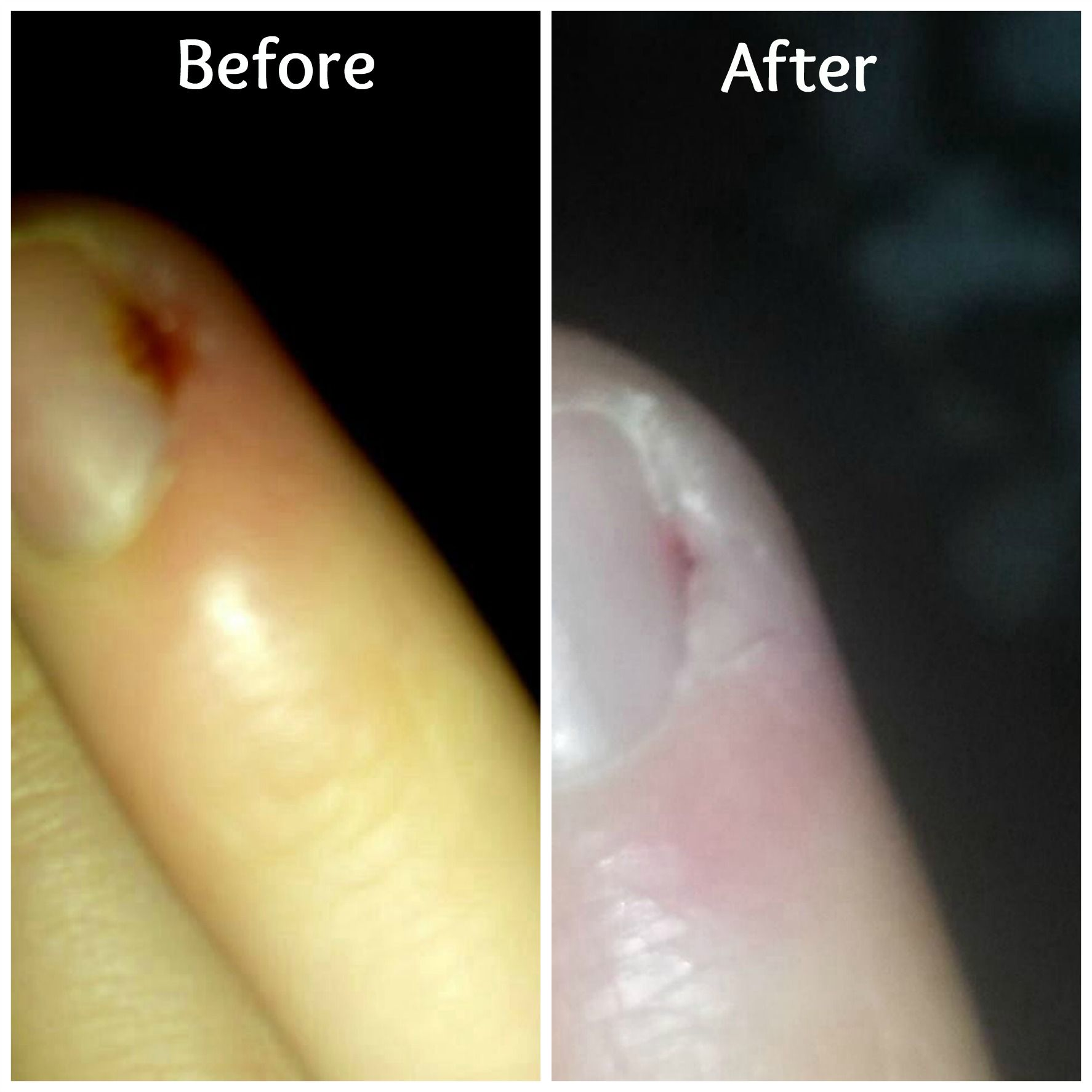 Inflamed ingrown hangnail after 3 soaks in unscented dead sea salts ...
