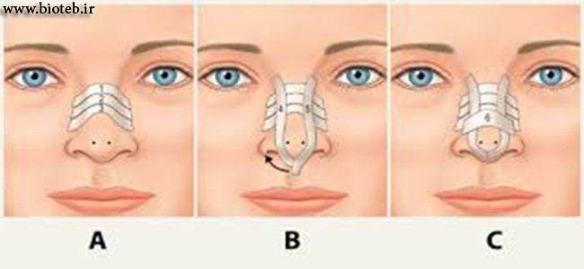 بررسی جراحی زیبایی بینی(رینوپلاستی) http://bioteb.ir/10097