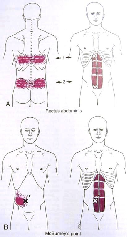 Rectus Abdominis Trigger Point Diagram