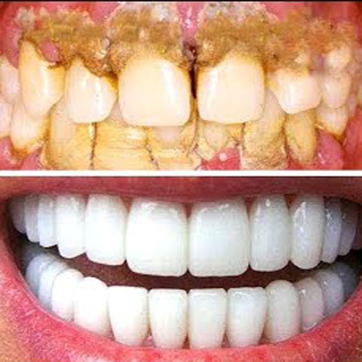Pin auf Zähne