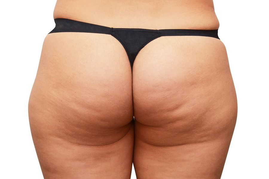 Cellulite butt pictures
