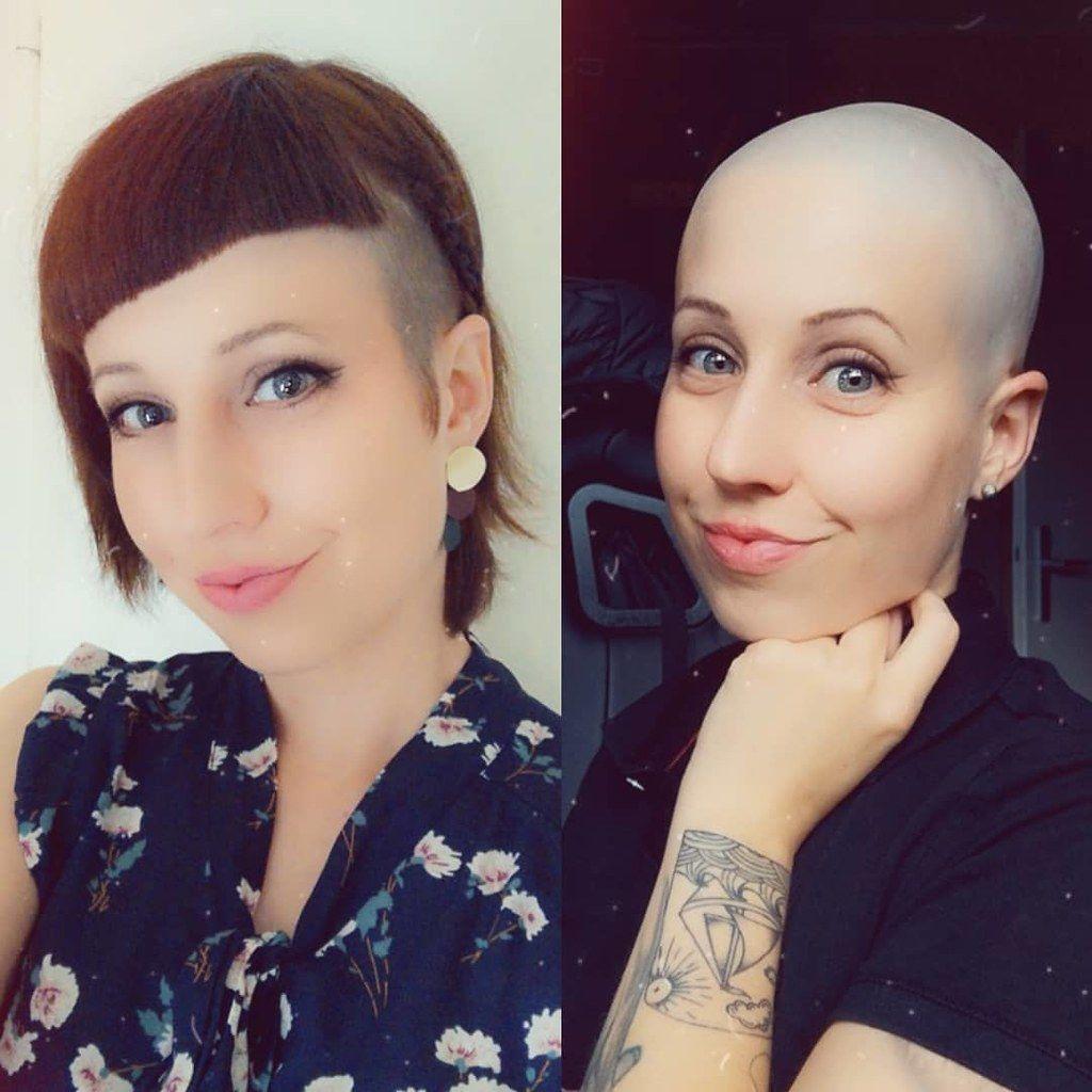 Glatze Rasieren Vorher Nachher