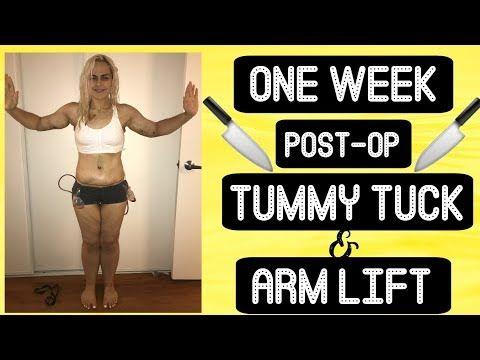 Post Op Plastic Surgery Week 1 Tummy Tuck Arm Lift Full Body Pictures Youtube Tummy Tucks Tummy Tuck Surgery Tummy Tuck Pictures