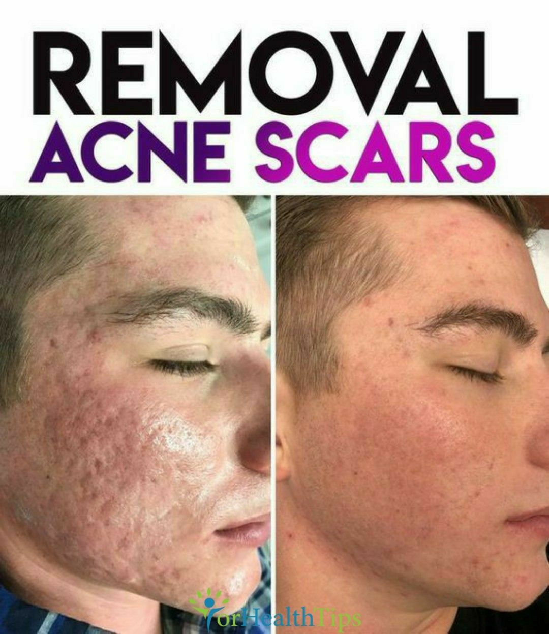 Pin On Best Acne Treatment Tips
