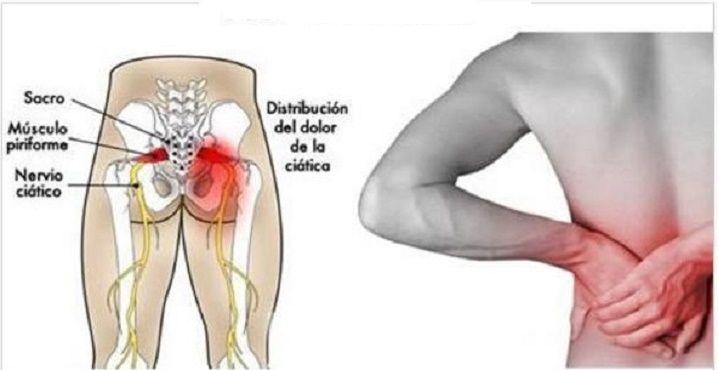 Do na nervo quadril articulação ciático