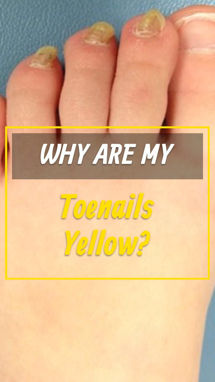 20 Nail Yellow Videos Tips Yellow Toe Nails Toe Nails Good Health Tips