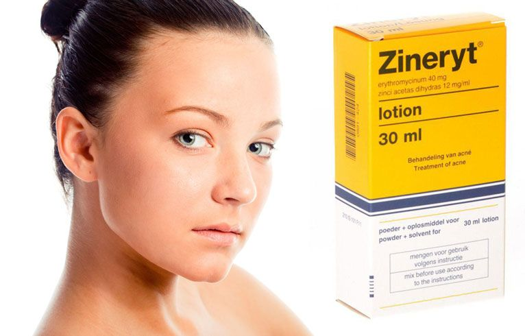 Zineryt For Acne A Remedy That Works Acne Scalp Acne Acne