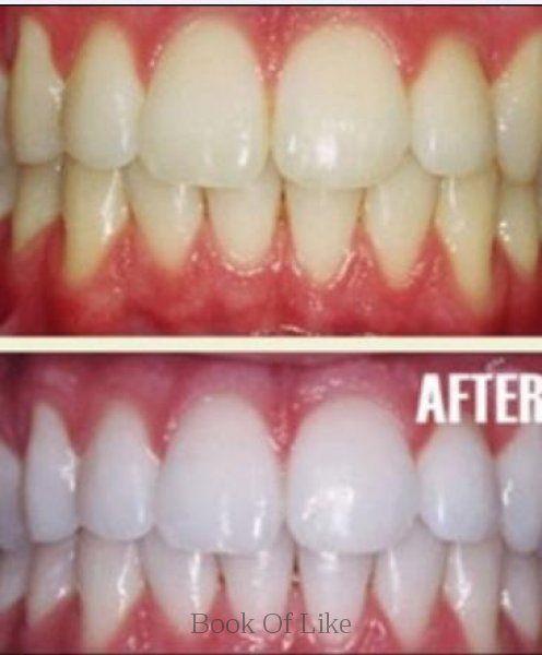 Diy teeth whitening diy teeth this homemade tooth whitener is diy teeth whitening diy teeth this homemade tooth whitener is perfect i now solutioingenieria Choice Image