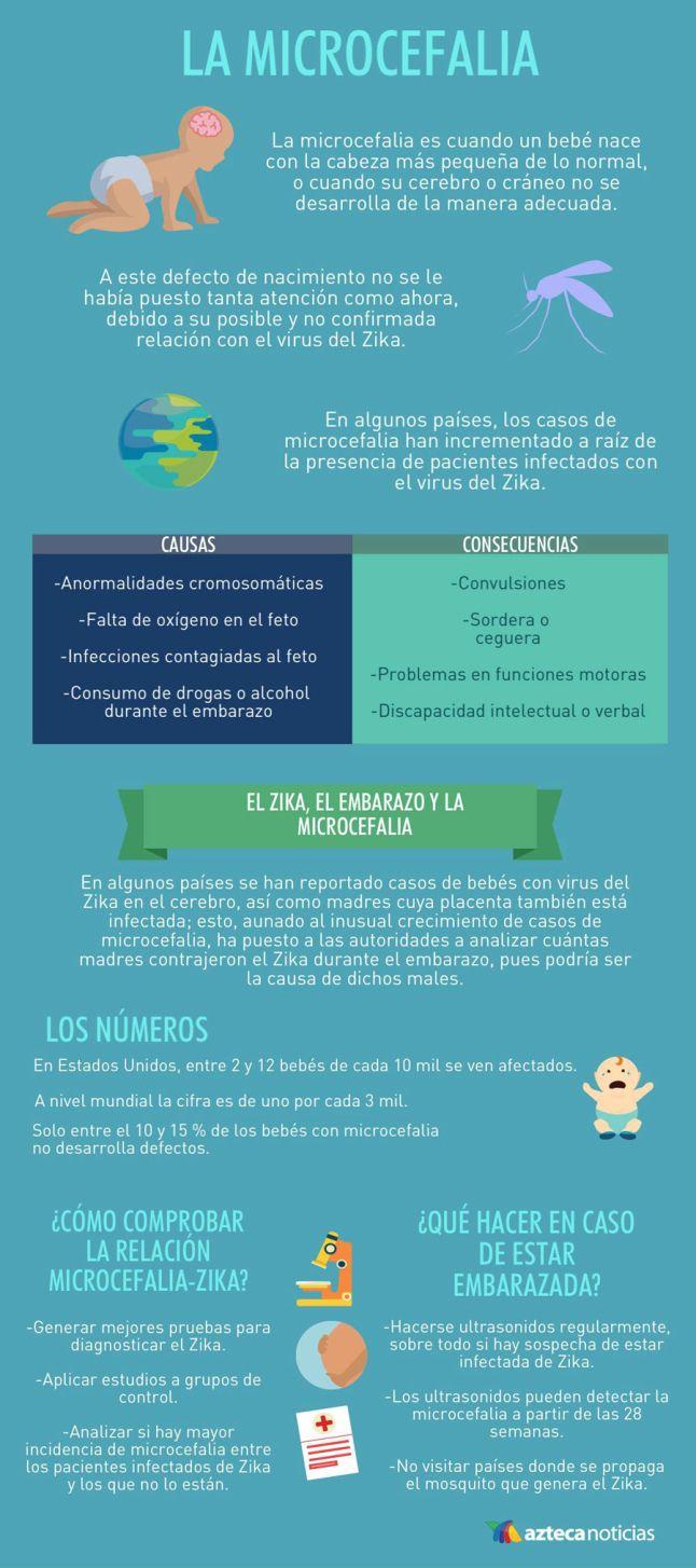 Microcefalia #infografia #infographic #health