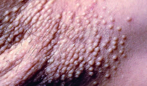 Lichen Myxedematosus Cobblestone Appearance Of Skin
