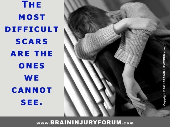 Traumatic Brain Injury Quotes: This Is For Brain Injury, But I Think It Is True For