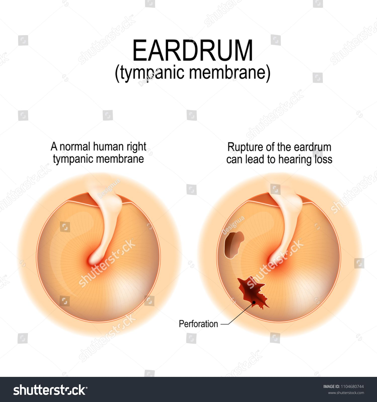 Ruptured Eardrum Anatomy Of The Humans Eardrum Healthy And Perforated Tympanic Membrane Vector Illustration For In 2020 Human Icon Illustration Illustration Design