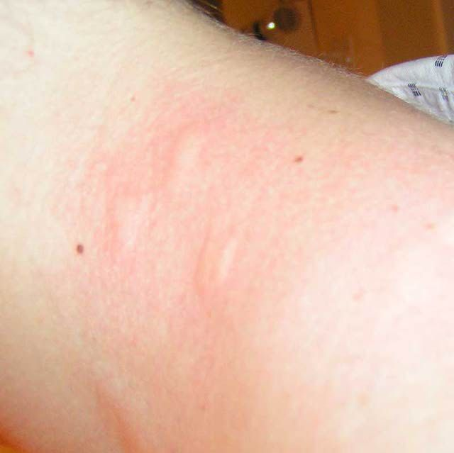 How to Recognize a Bed Bug Bite | Stuff to Buy