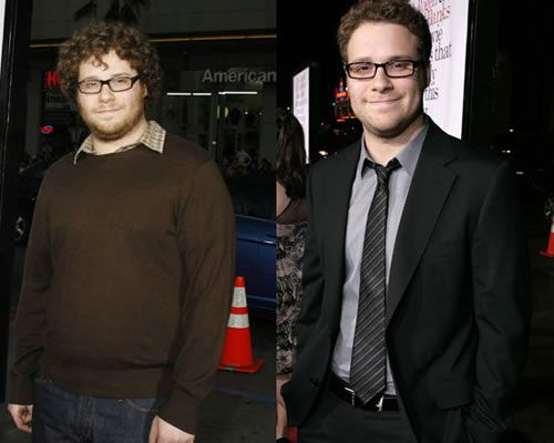 Can weight loss reduce hirsutism image 4