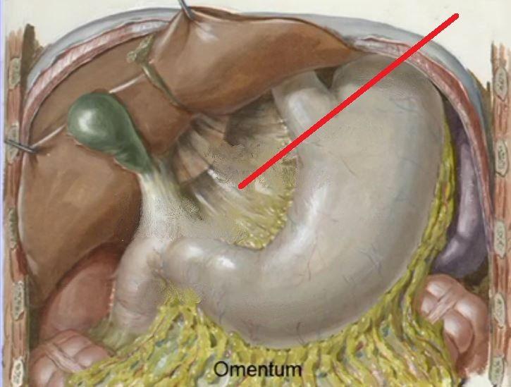 Gastrohepatic Ligament Peritoneum Pinterest Gross Anatomy And