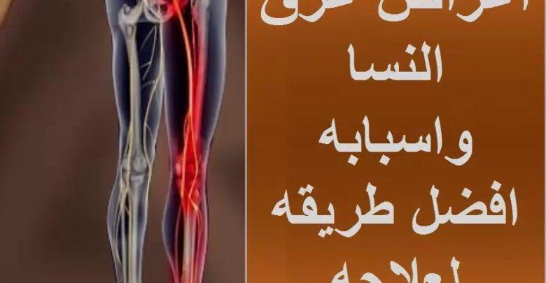 مرض عرق النسا أعراضه وأسبابه وعلاجه In 2021 Neon Signs Arabic Calligraphy