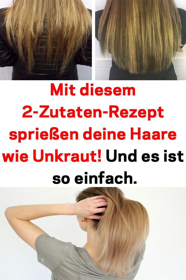Mit Diesem 2 Zutaten Rezept Spriessen Deine Haare Wie Unkraut Und Es Ist So Einfach Gesunde Haare Tipps Haare Nachwachsen Haare Pflegen