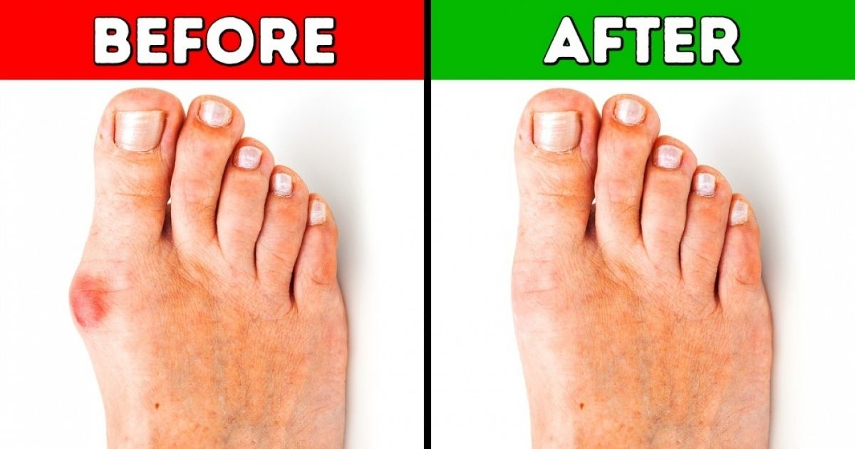4 Effective Ways to Get Rid of Bunions Get rid of