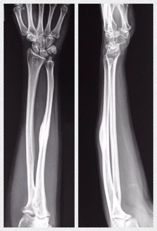 Huesos (radio y ulna) posición Ap y lateral | ~Anatomía Humana ...