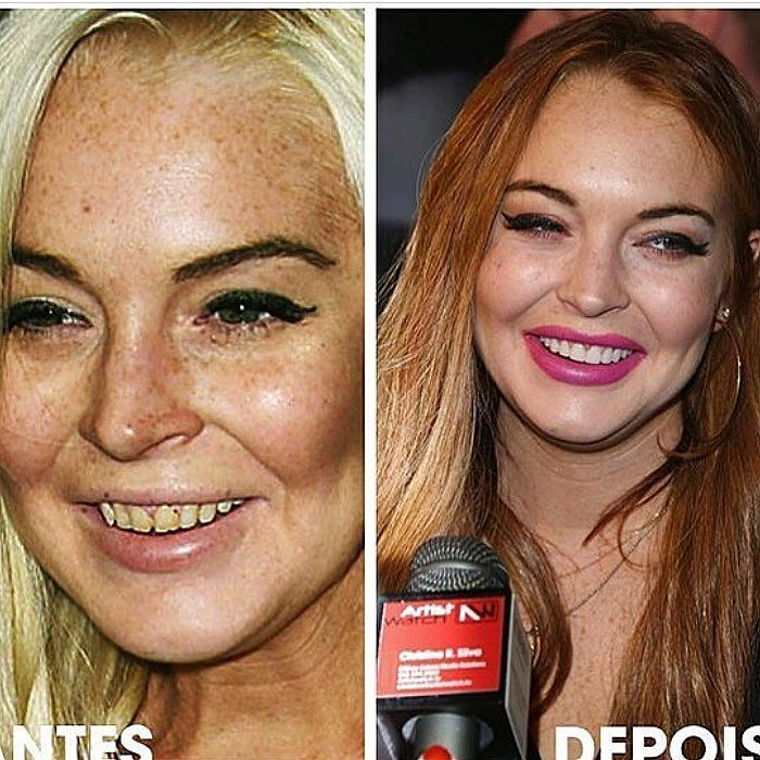 Before and After: 10 Celebrities with Dental Work