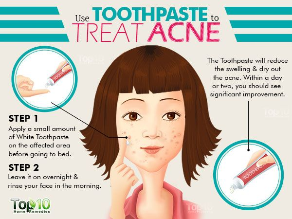 overnight acne treatment toothpaste