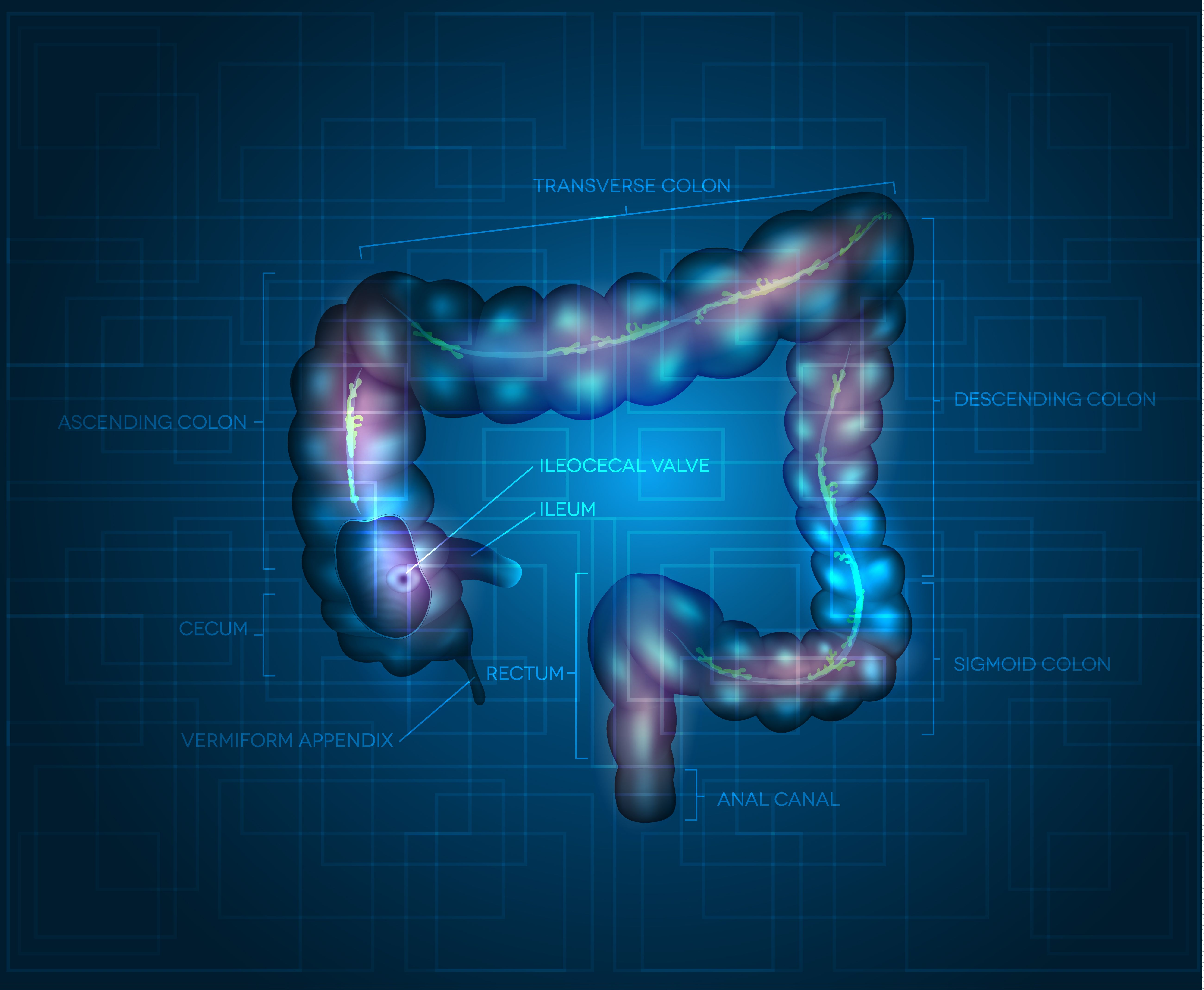 Phase 3 Trial Results Of Stelara For Crohn S Disease Indicate Colon Cancer Awareness Cancer Awareness Months Colitis
