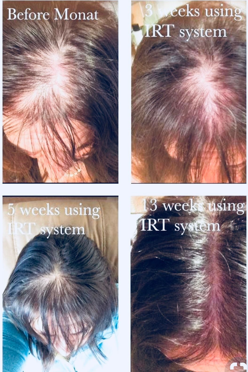 Thyroid Hair Loss Pattern New Decorating Ideas
