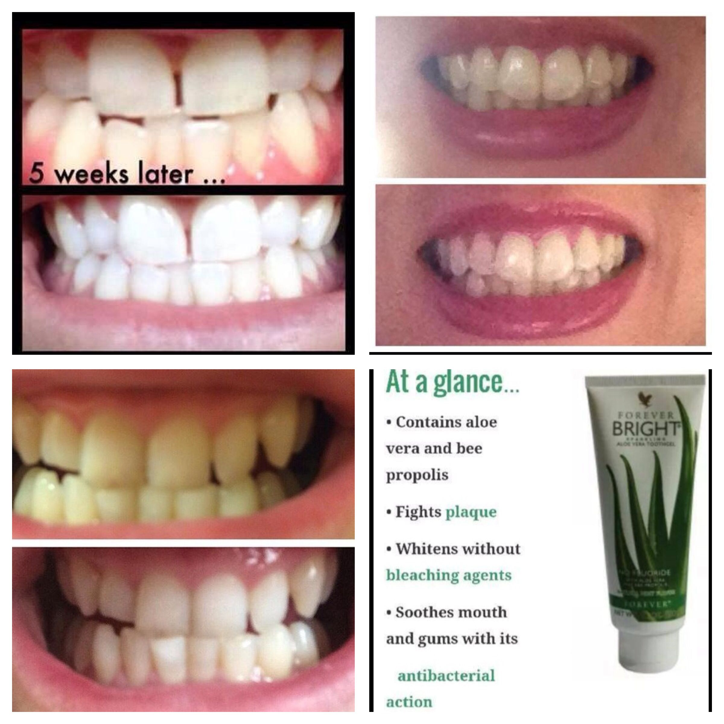 how to get plaque off your teeth naturally