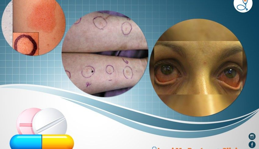 Here is a blog on Allergy. Read to understand the symptoms
