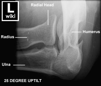 Radiographic Antomy - Elbow Radial Head | Medical ...