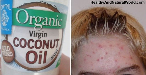 does coconut oil really work for hair