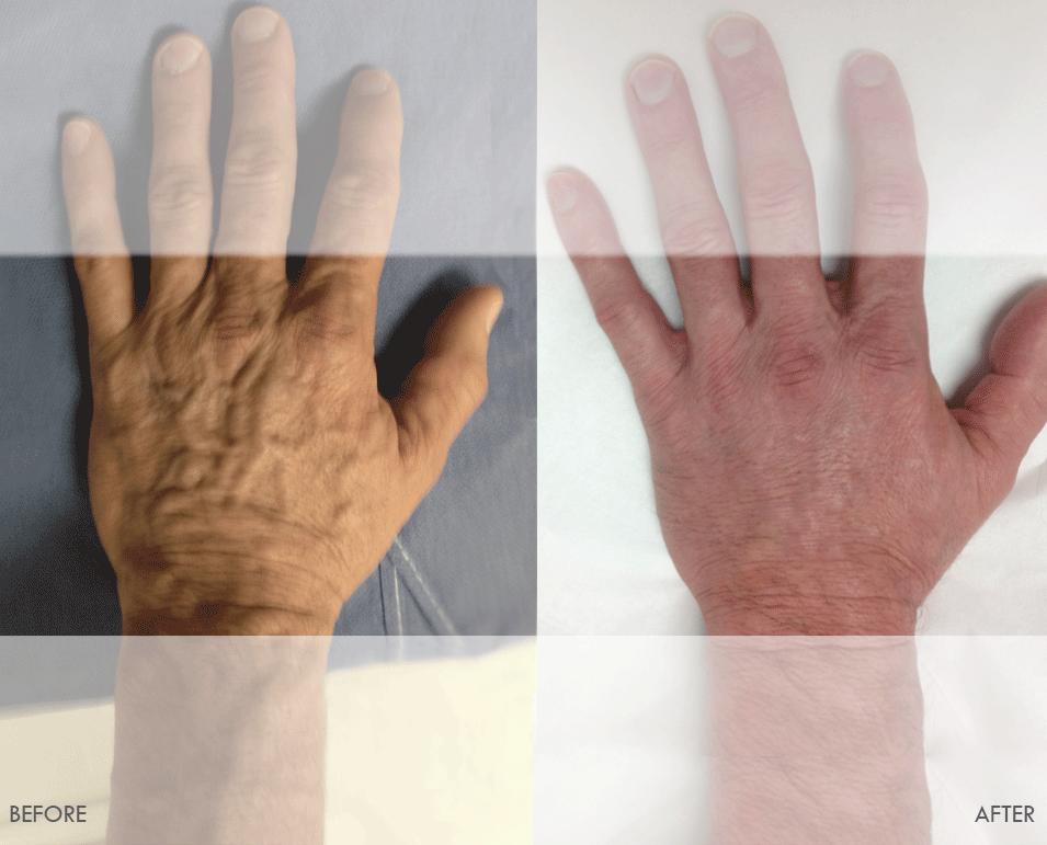 Hand Rejuvenation Beforeafter Pictures Of Vena Vascular Lab Vein