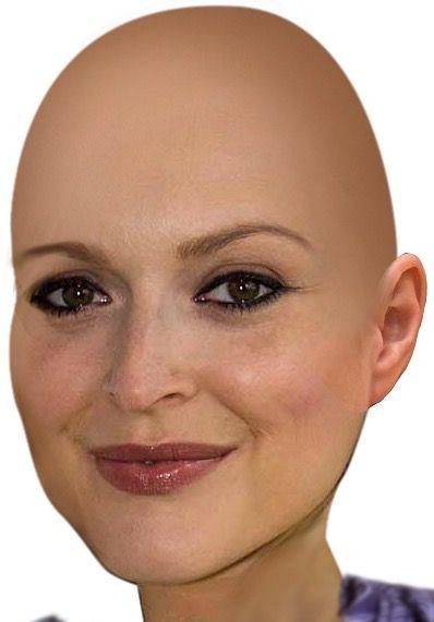 Mädchen glatze
