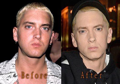 Eminem Plastic Surgery   Top Celebrity Surgery   Celebrity surgery, Plastic  surgery, Celebrity plastic surgery