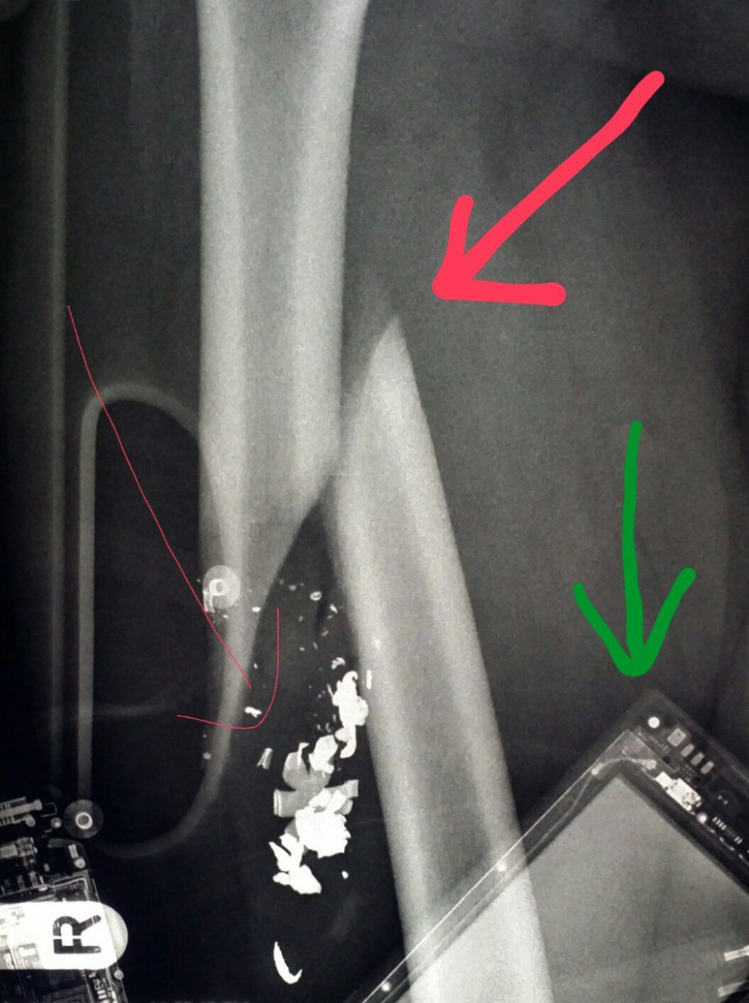 #Xray of #femur (#leg) after #patient was #shot shows # ...X Ray Femur Code