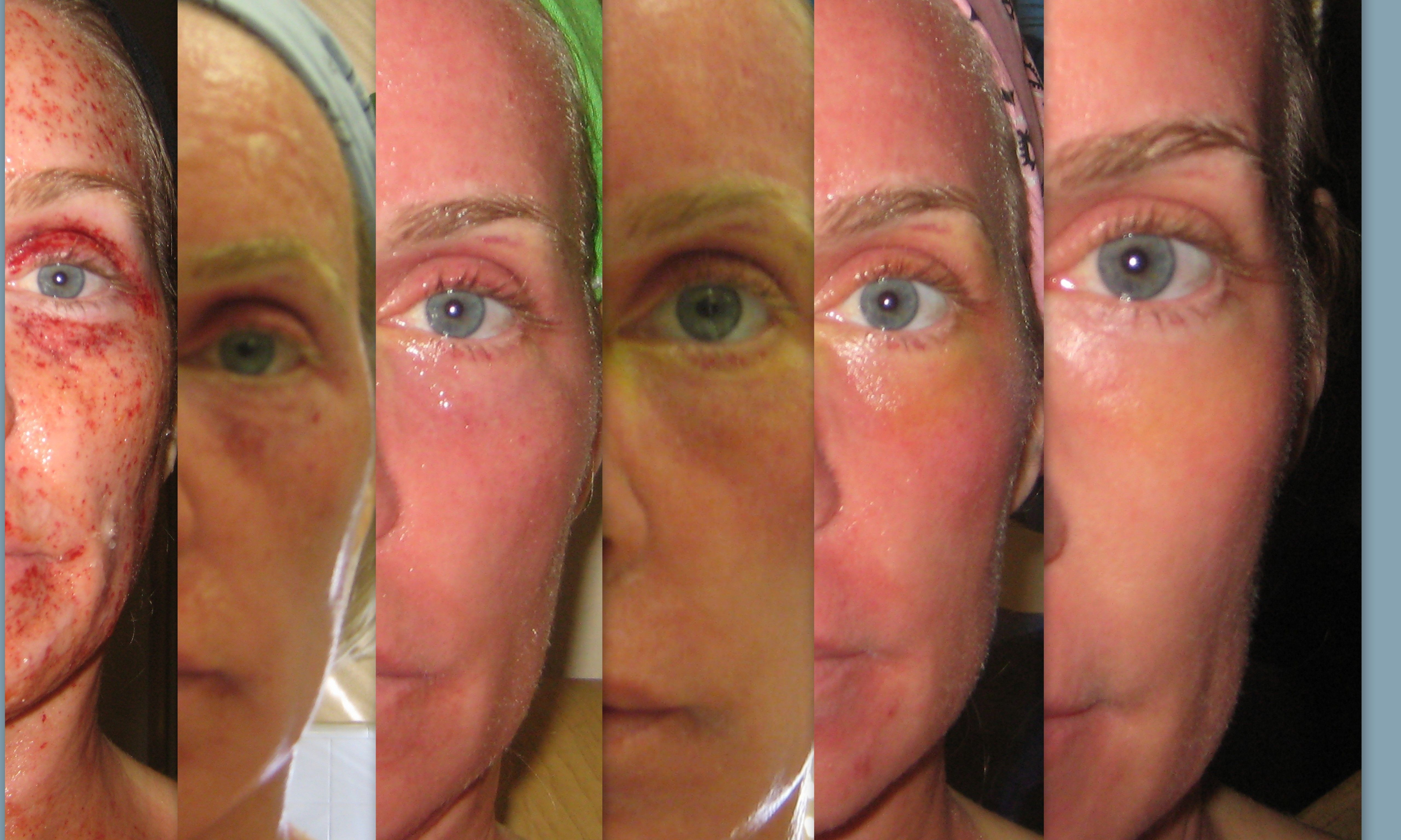 The Healing Process After Receiving Fraxel Co2 Laser Treatment