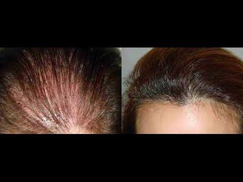زراعة الشعر عند المرأة زراعة الشعر للنساء Youtube