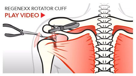 Can A Torn Rotator Cuff Heal On Its Own Without Surgery