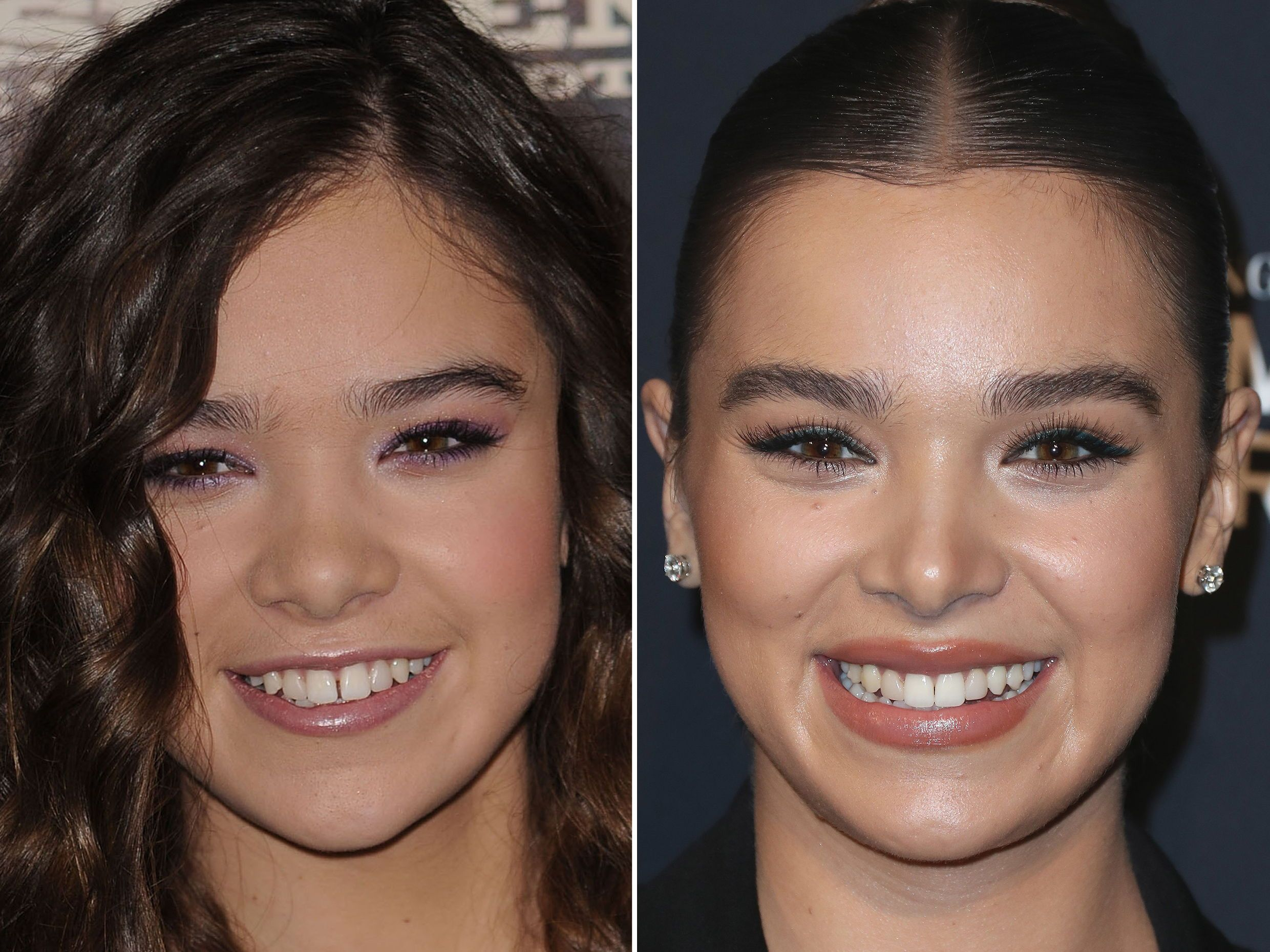 Hailee Steinfeld, Before and After Hailee steinfeld