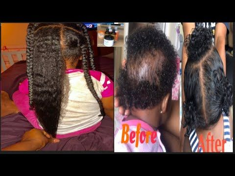 baby/toddler kids must have hair products for hair growth