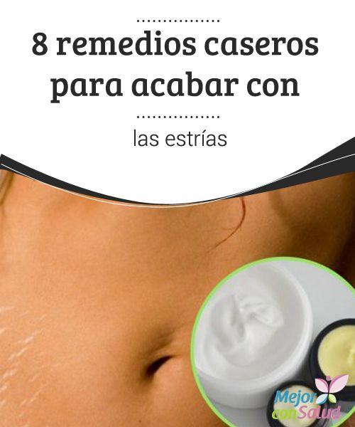 8 Remedios Caseros Para Reducir Las Estrías Mejor Con Salud Remedios Caseros Para Estrias Remedio Para Estrias Como Quitar Estrias Blancas