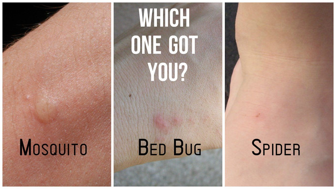 Bed Bug and Mosquito Bite Comparisons (With images) Bed