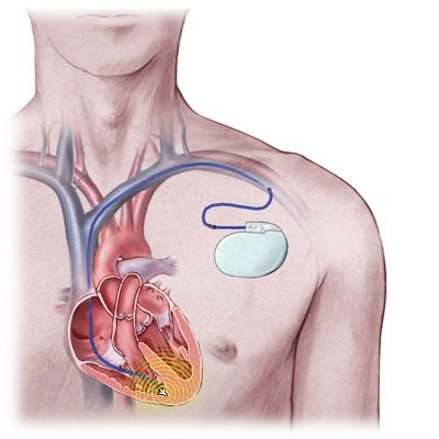 Help and Support For Heart ICD Pacemaker Cardioverter Defibrillator Implant Recipients